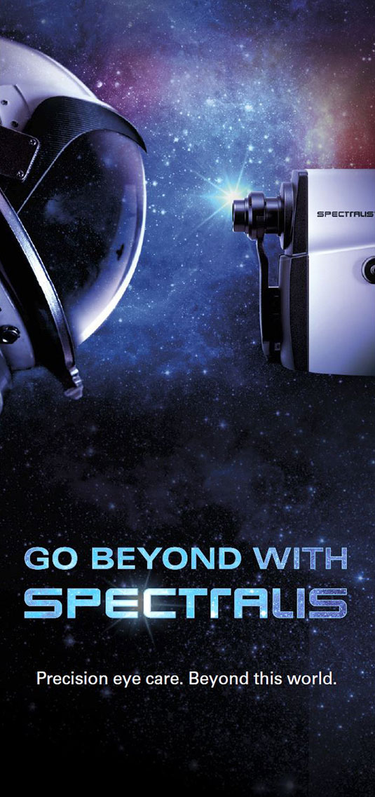 Patient Flyer Go Beyond with SPECTRALIS