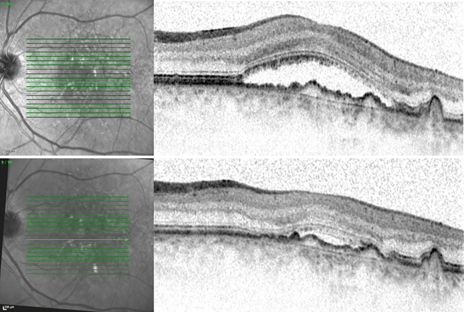 Using OCT to monitor treatment of Wet AMD. Before treatment (top), 4 weeks after initial treatment (bottom)