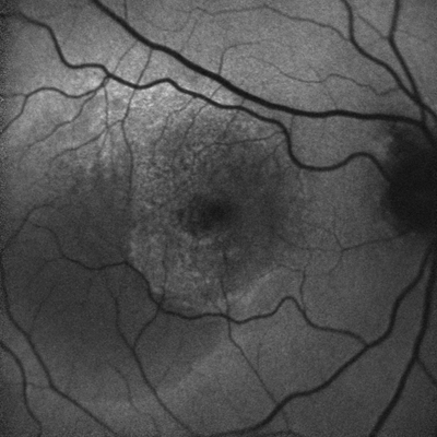 FAF of a patient with AMD