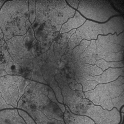 FAF of a patient with diabetic macular edema (DME)