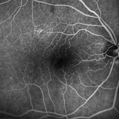 FA of a patient with central serious chorioretinopathy