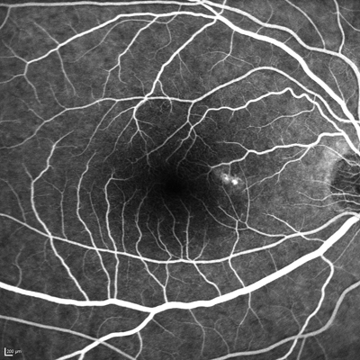 FA of a patient with choroidal neovascularization