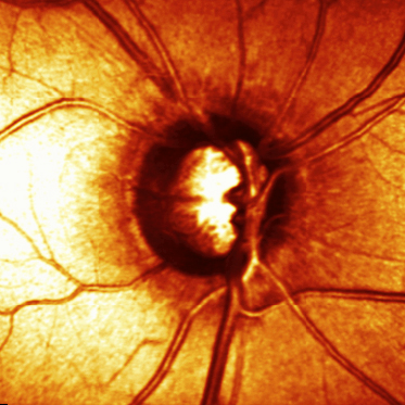 HRT of a glaucomatous optic nerve head