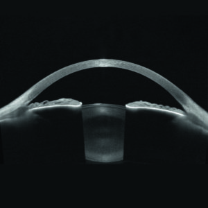 Hochaufgelöste Visualisierung des gesamten vorderen Augenabschnitts, von der Vorderseite der Hornhaut bis zur Rückseite der Linse.