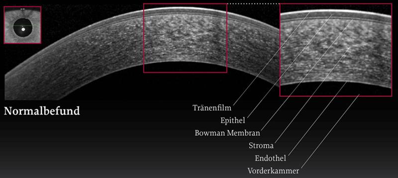 OCT-Aufnahme einer normalen Hornhaut